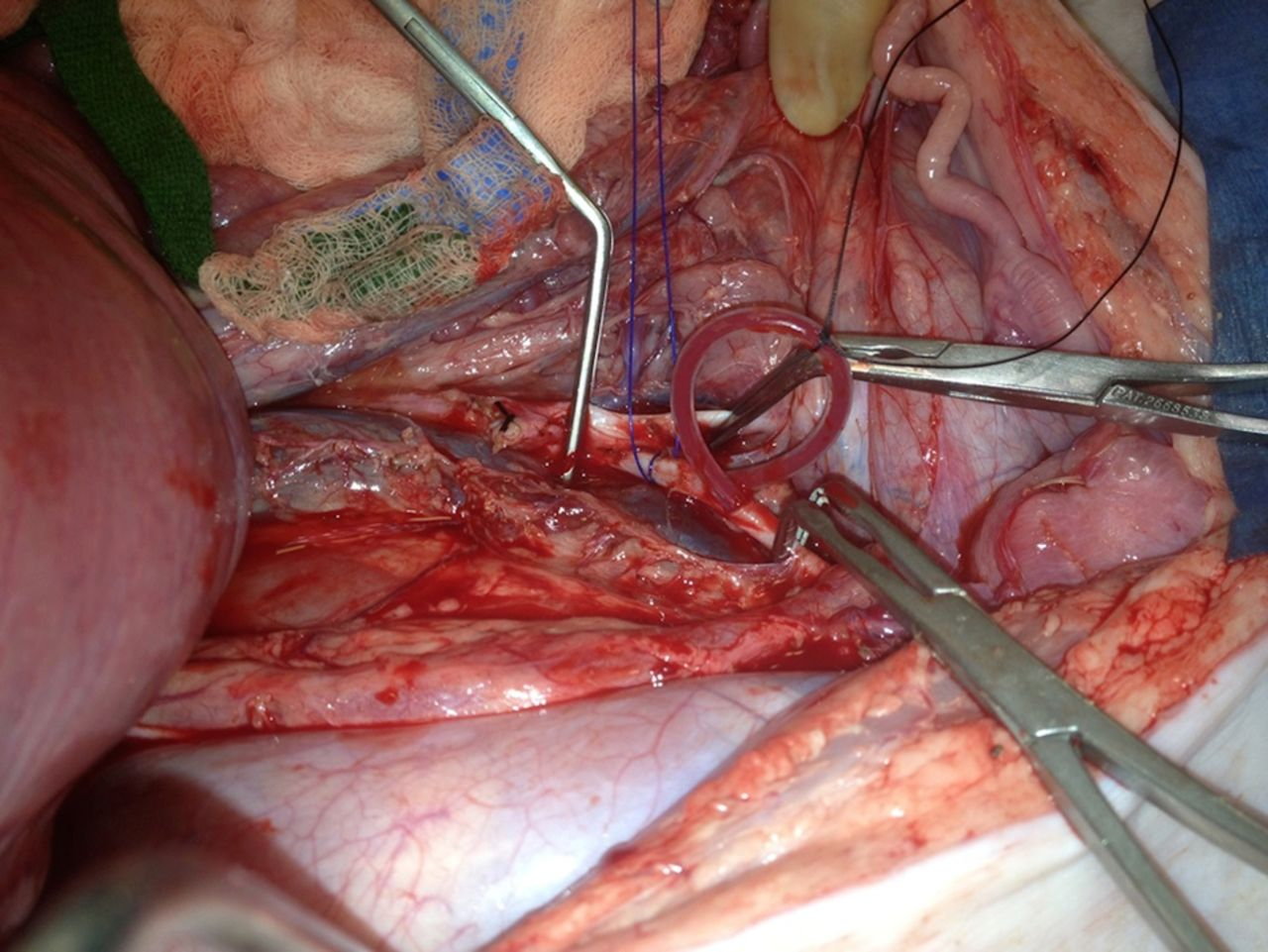 Abdominal vascular trauma | Trauma Surgery & Acute Care Open