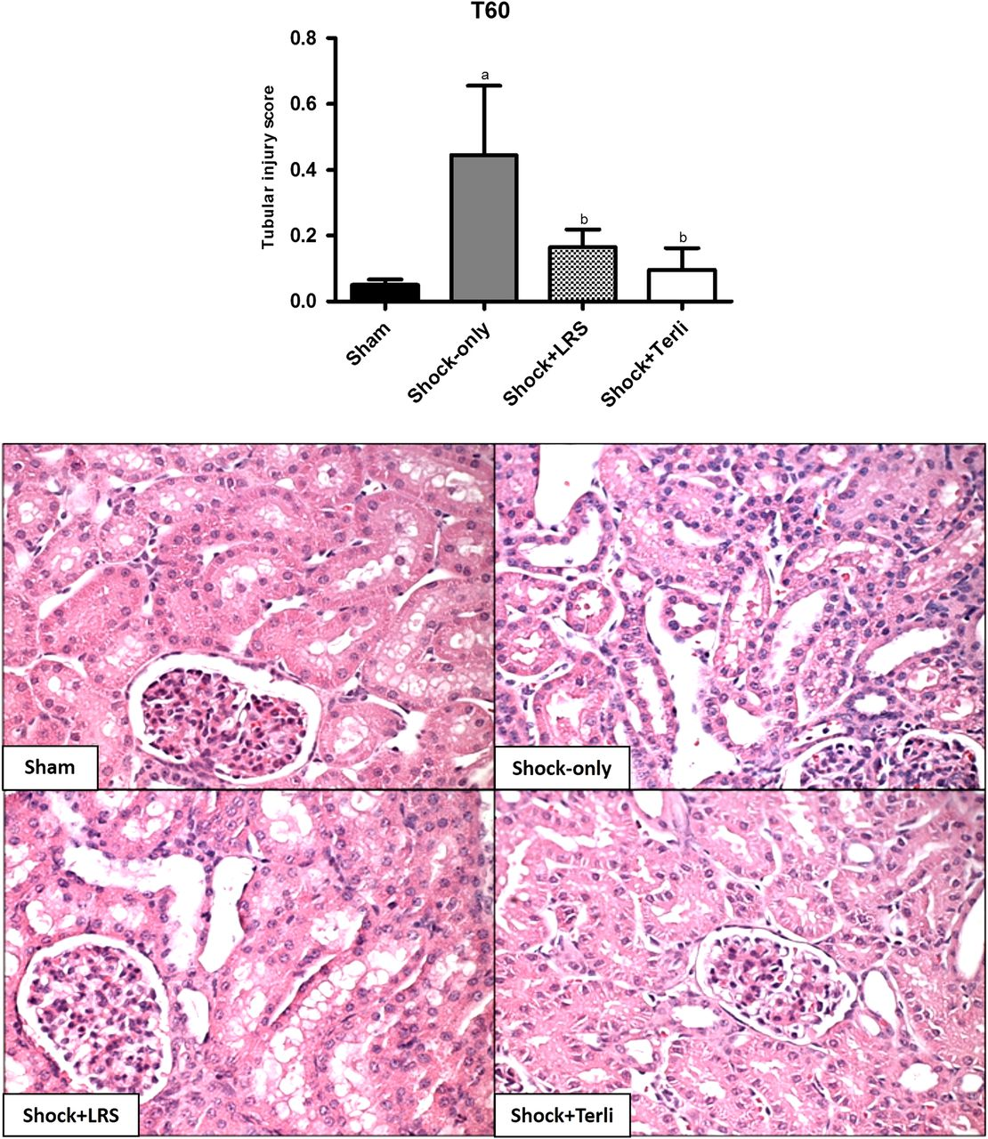 Vasopressin Analog Terlipressin Attenuates Kidney Injury In
