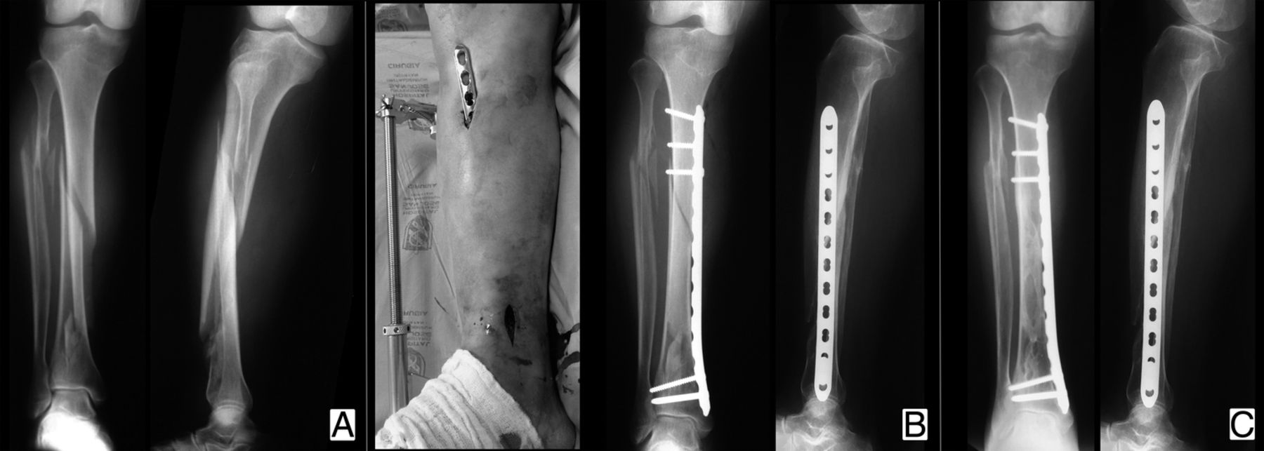 Management Of Diaphyseal Tibial Fractures By Plate