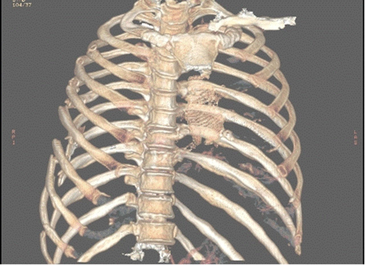 rib fixation who what when trauma surgery acute care open