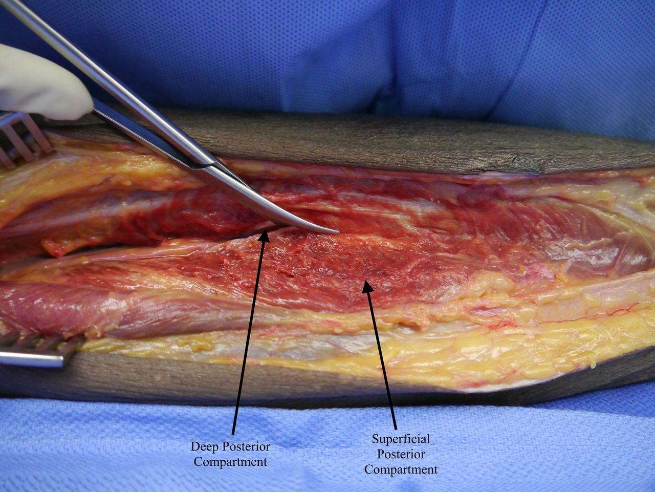 Lower extremity compartment syndrome | Trauma Surgery