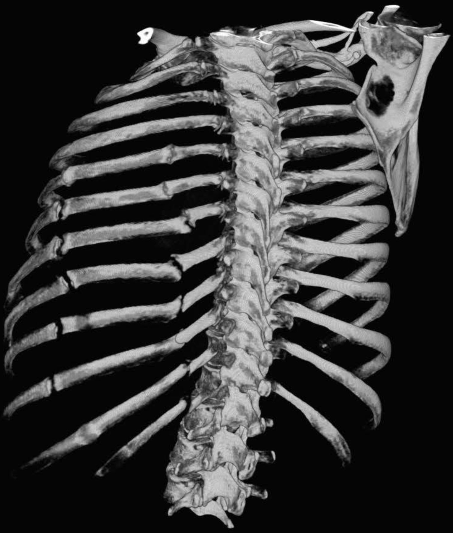Fracture of the rib: treatment at home with drugs and folk remedies